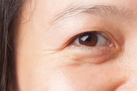 Xuất hiện nếp nhăn ở vùng mắt